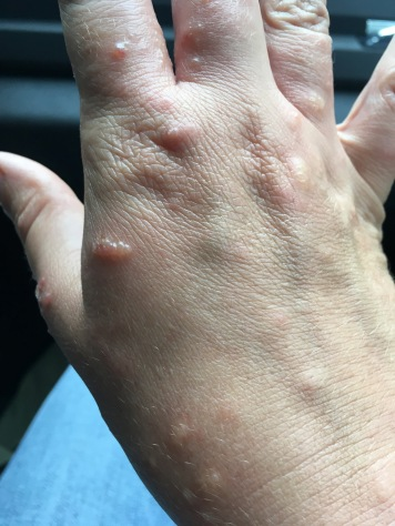ivy hand